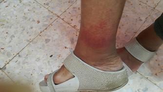 מאסטר טאפינג- רגל לפני טיפול